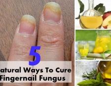 Top 5 des moyens naturels pour guérir champignon ongle