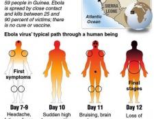Attention: tout ce que vous devez savoir sur le virus Ebola