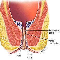 Fissure anale : symptmes et traitement - Ooreka