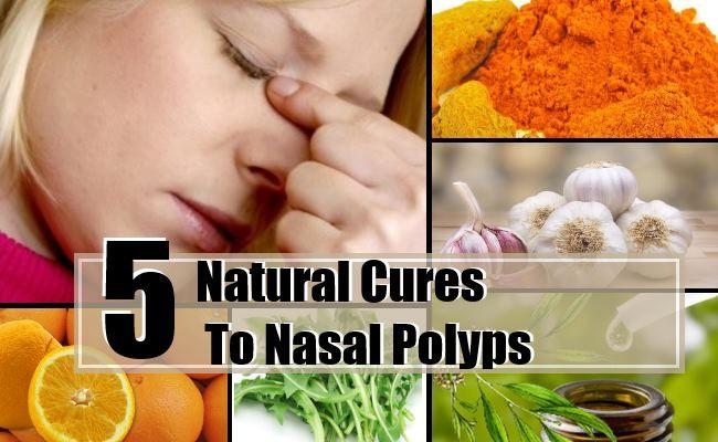 5 remèdes naturels pour les polypes nasaux