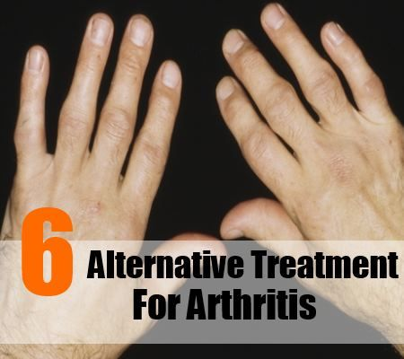 6 alternative de traitement pour l'arthrite
