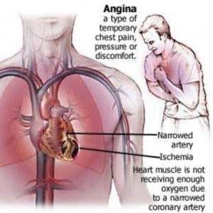 Comment traiter l 39 angine de poitrine en utilisant des for Angine traitement maison